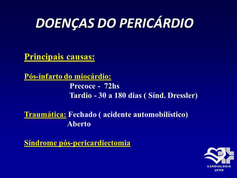 DOENÇAS DO PERICÁRDIO Principais causas: Pós-infarto do miocárdio: