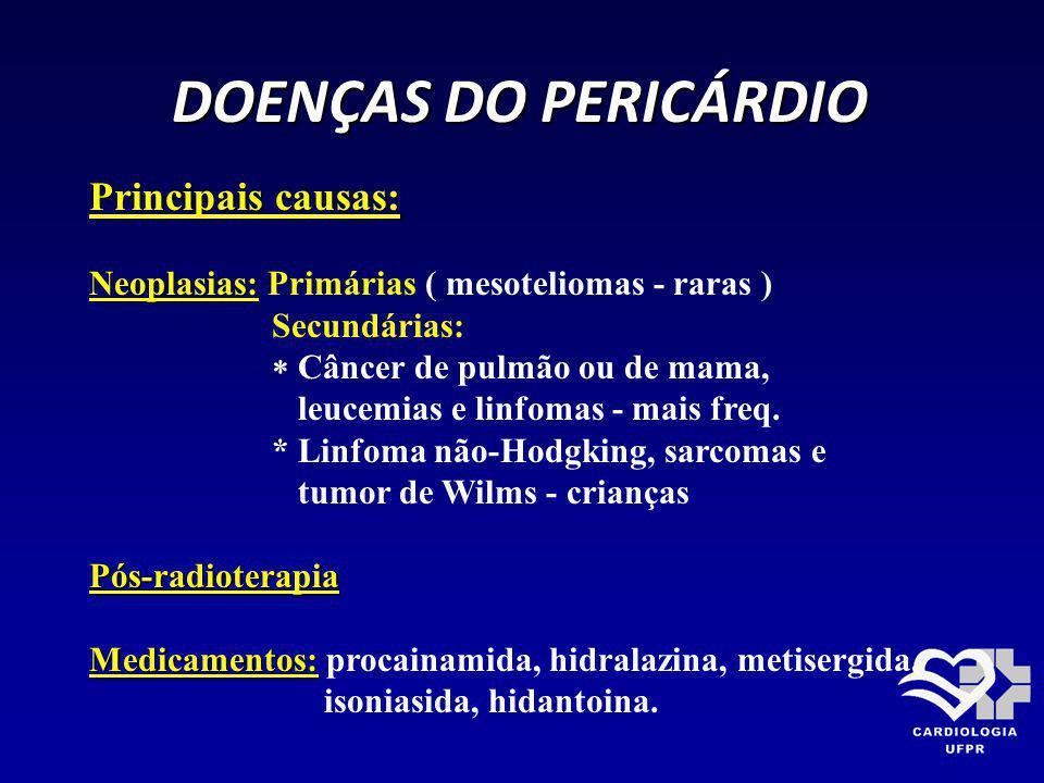 DOENÇAS DO PERICÁRDIO Principais causas: