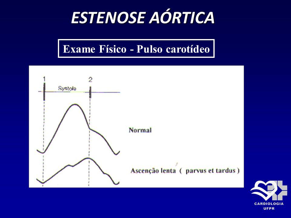 Exame Físico - Pulso carotídeo