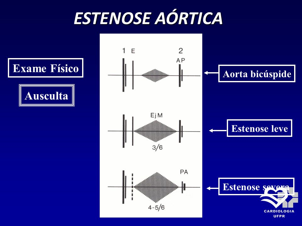 ESTENOSE AÓRTICA Exame Físico Ausculta Aorta bicúspide Estenose leve