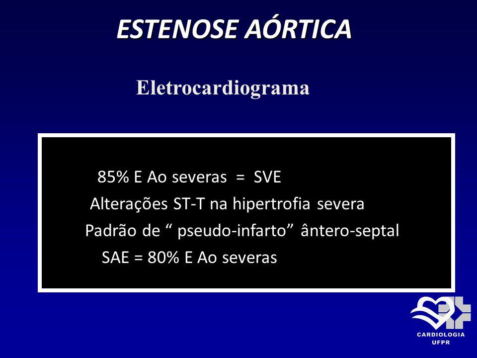 ESTENOSE AÓRTICA Eletrocardiograma 85% E Ao severas = SVE