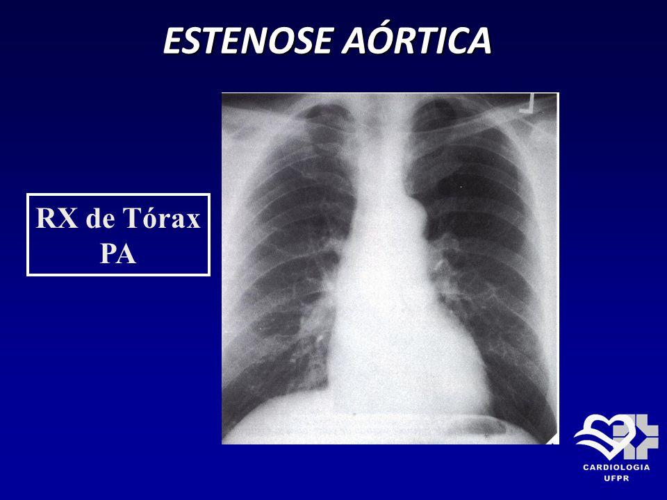 ESTENOSE AÓRTICA RX de Tórax PA