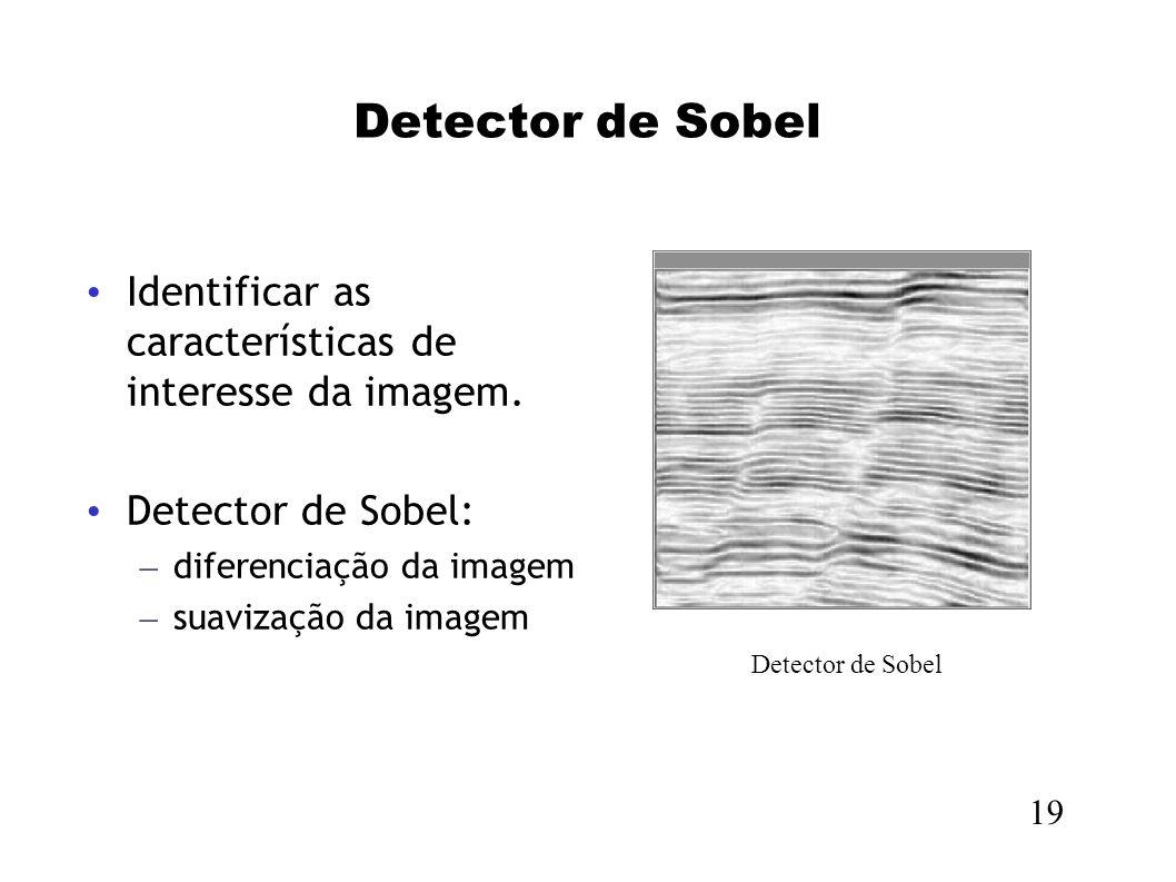Detector de Sobel Identificar as características de interesse da imagem. Detector de Sobel: diferenciação da imagem.