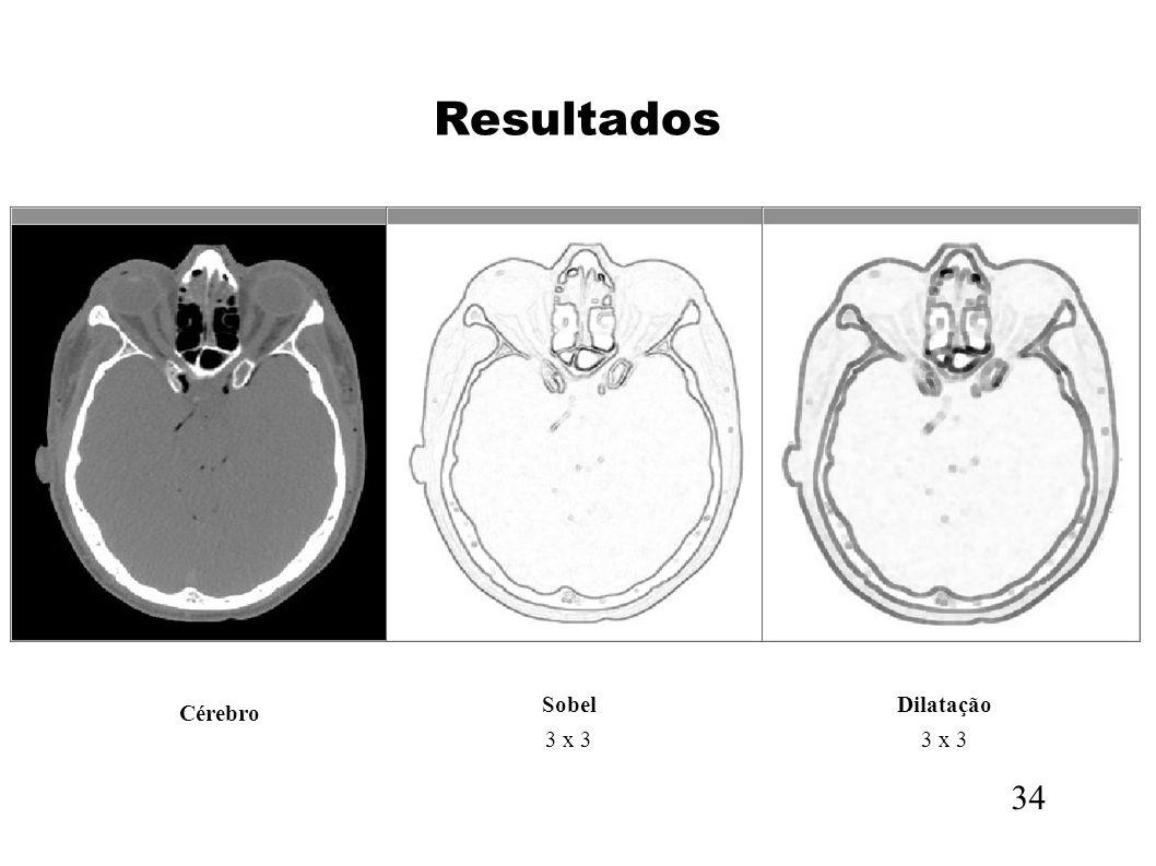 Resultados Sobel 3 x 3 Dilatação 3 x 3 Cérebro 34