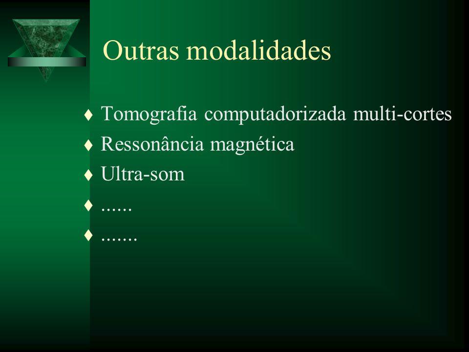 Outras modalidades Tomografia computadorizada multi-cortes