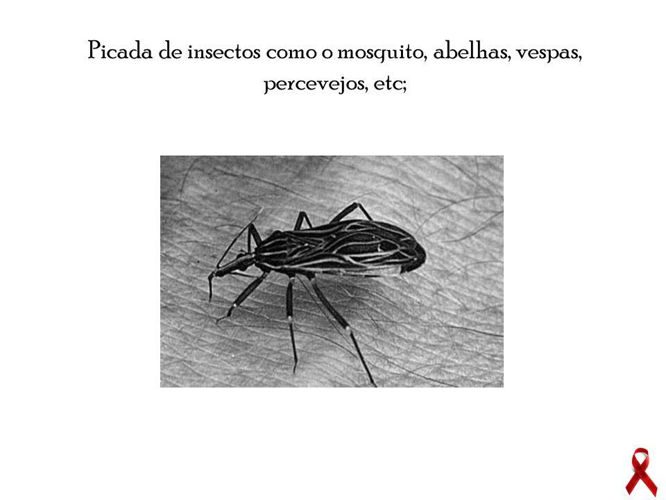 Picada de insectos como o mosquito, abelhas, vespas, percevejos, etc;