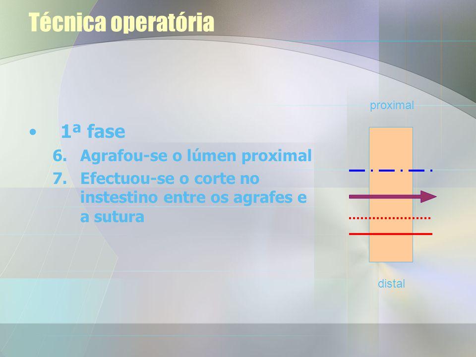 Técnica operatória 1ª fase Agrafou-se o lúmen proximal