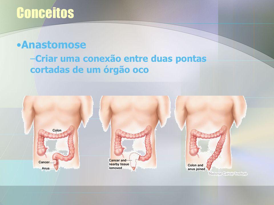 Conceitos Anastomose Criar uma conexão entre duas pontas cortadas de um órgão oco