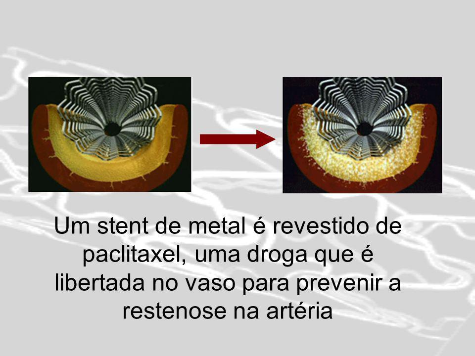 Um stent de metal é revestido de paclitaxel, uma droga que é libertada no vaso para prevenir a restenose na artéria