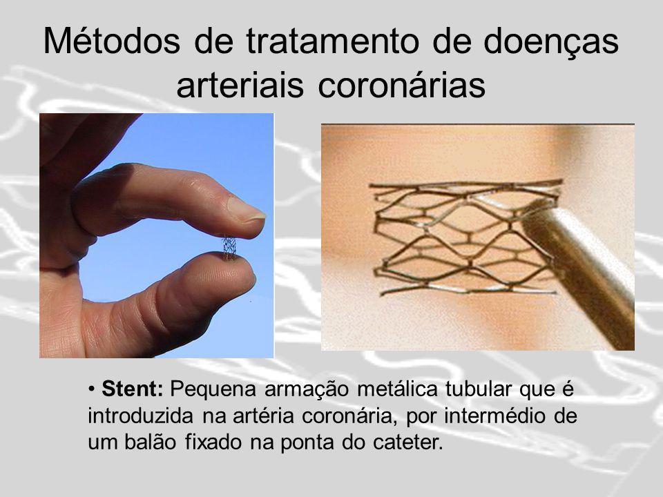 Métodos de tratamento de doenças arteriais coronárias