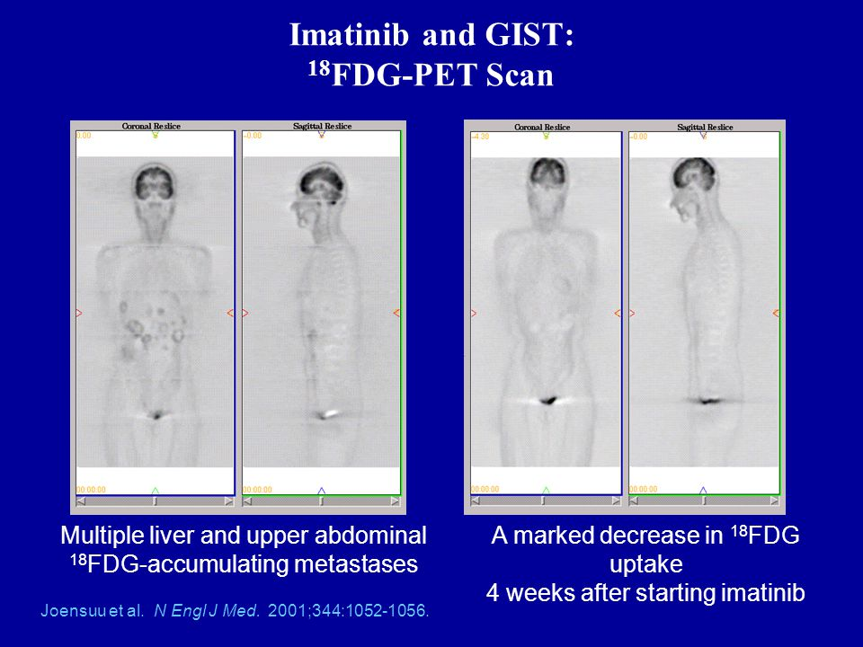 Imatinib and GIST: 18FDG-PET Scan