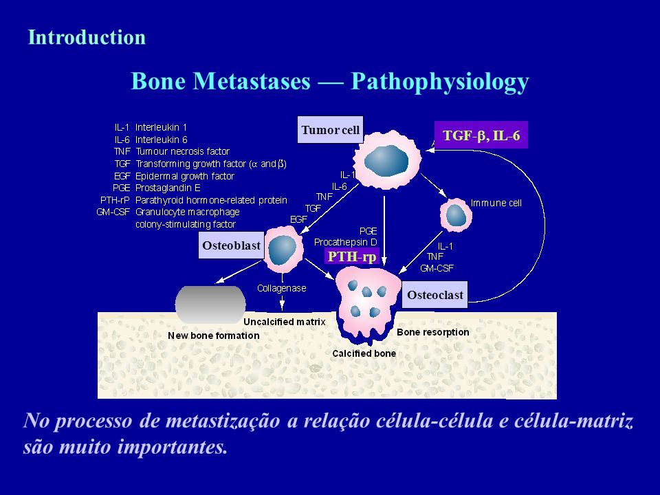 Bone Metastases — Pathophysiology