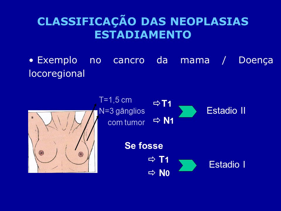 CLASSIFICAÇÃO DAS NEOPLASIAS ESTADIAMENTO