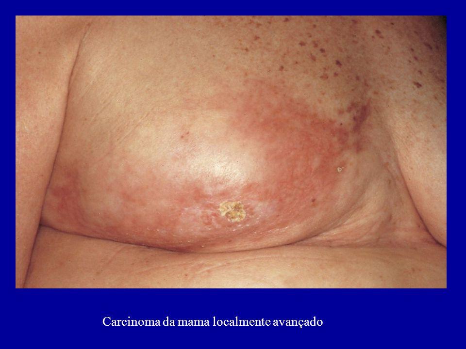 Carcinoma da mama localmente avançado