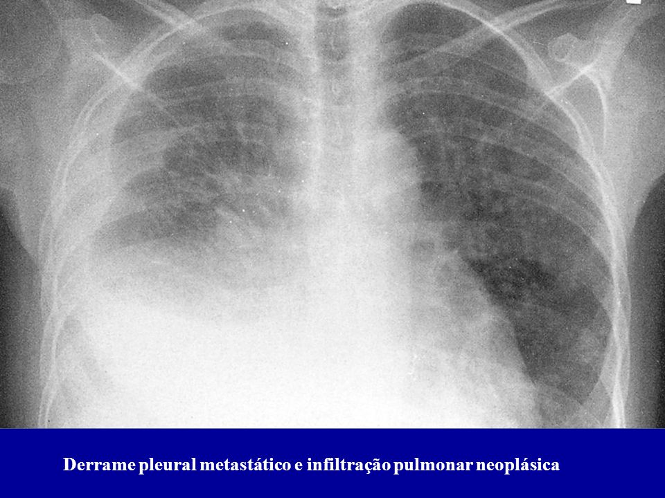 Derrame pleural metastático e infiltração pulmonar neoplásica