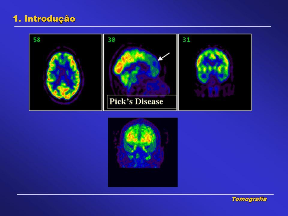 1. Introdução Tomografia