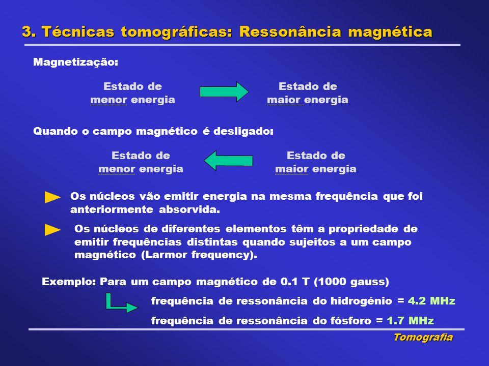 3. Técnicas tomográficas: Ressonância magnética