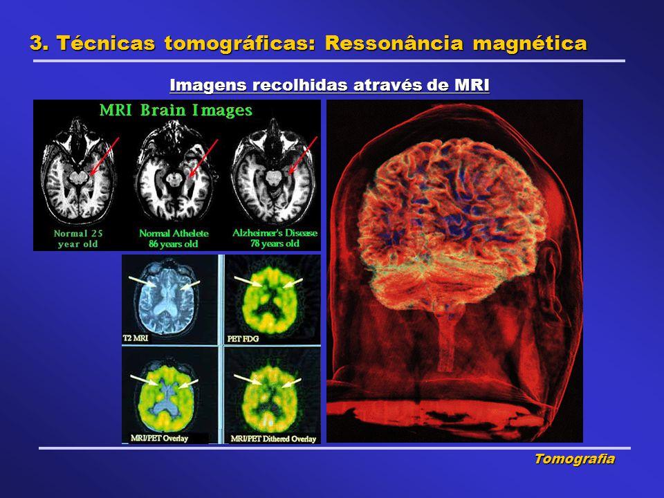 Imagens recolhidas através de MRI