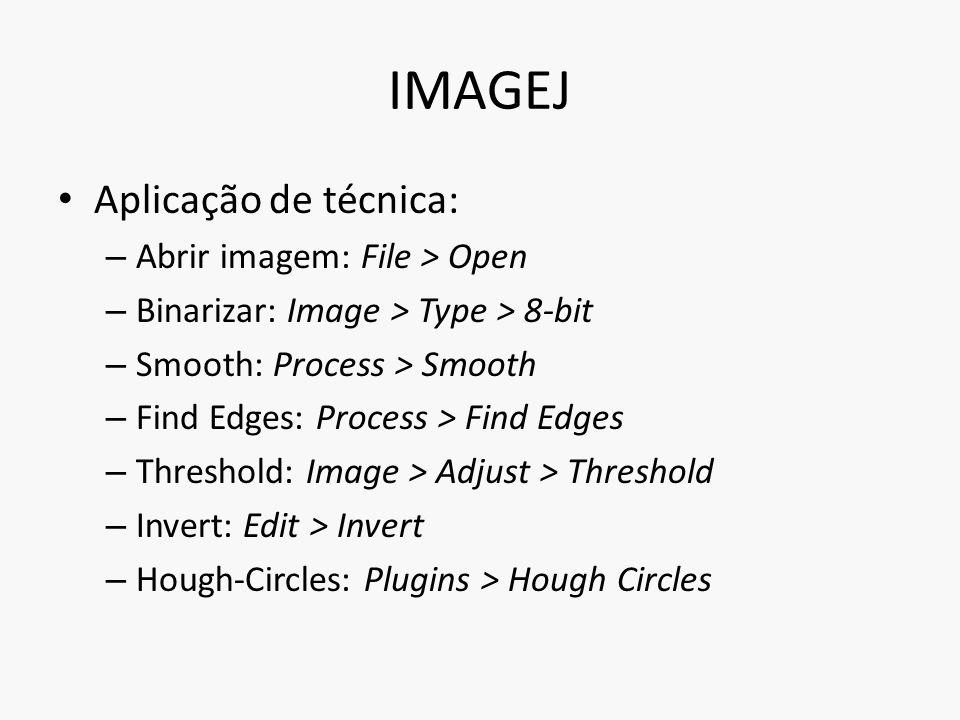 IMAGEJ Aplicação de técnica: Abrir imagem: File > Open