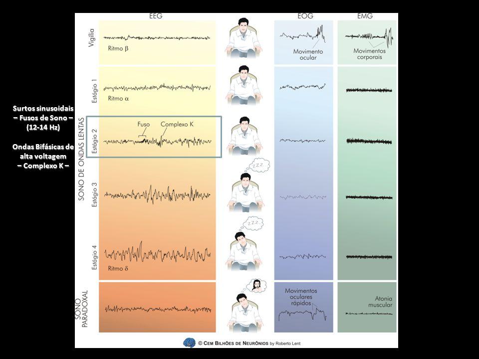 Surtos sinusoidais – Fusos de Sono – Ondas Bifásicas de alta voltagem