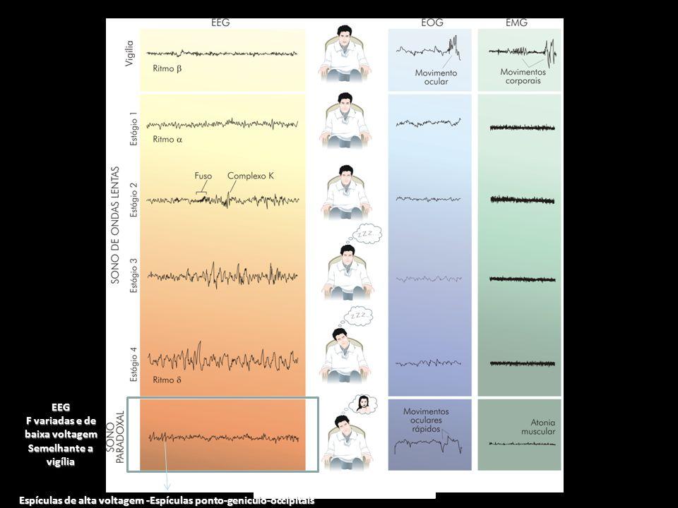 F variadas e de baixa voltagem Semelhante a vigília