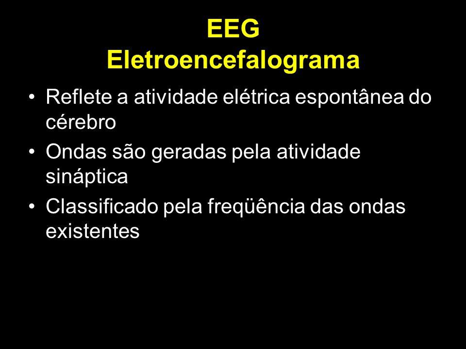 EEG Eletroencefalograma