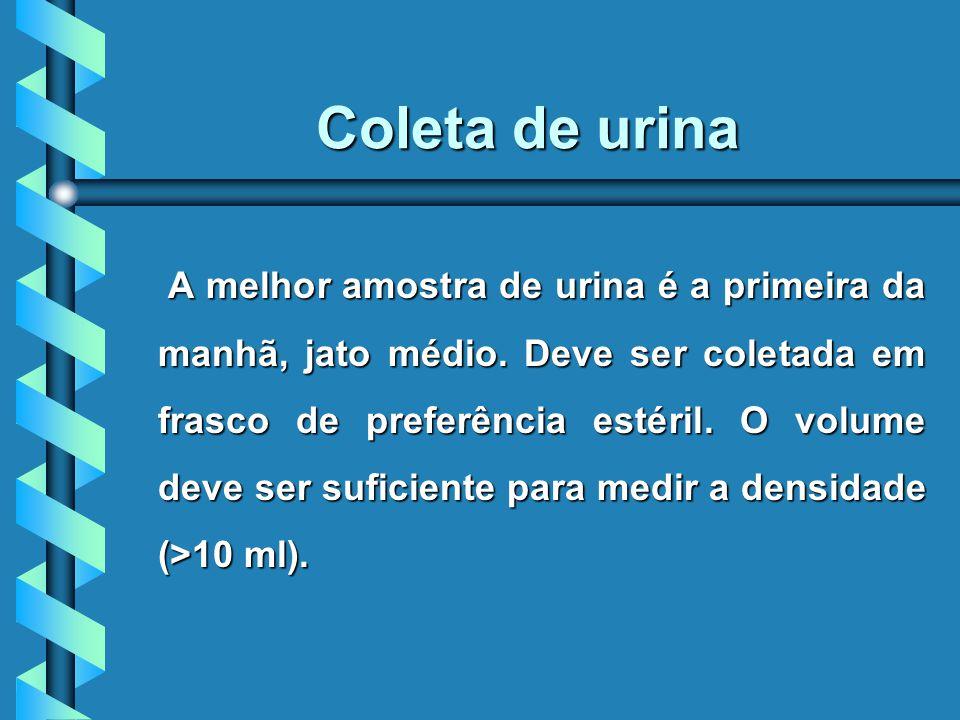 Coleta de urina