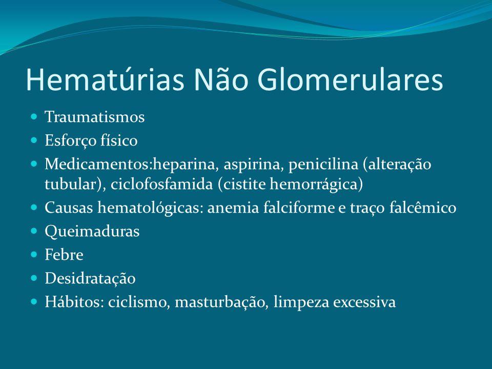 Hematúrias Não Glomerulares