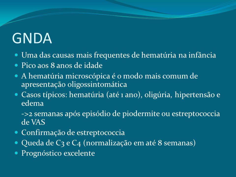 GNDA Uma das causas mais frequentes de hematúria na infância