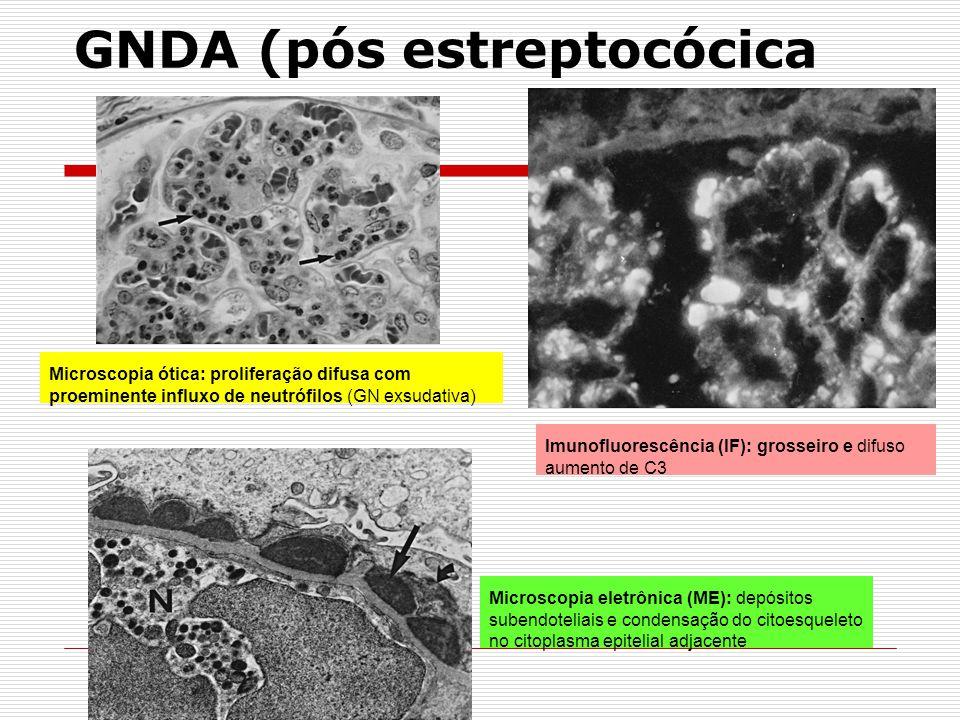 GNDA (pós estreptocócica