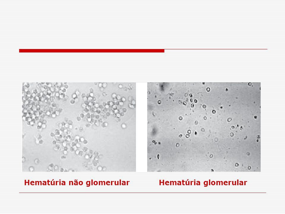 Hematúria não glomerular