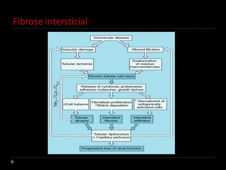 Fibrose intersticial