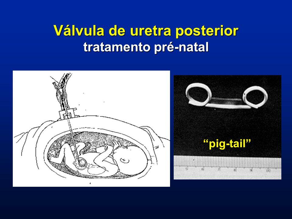 Válvula de uretra posterior tratamento pré-natal