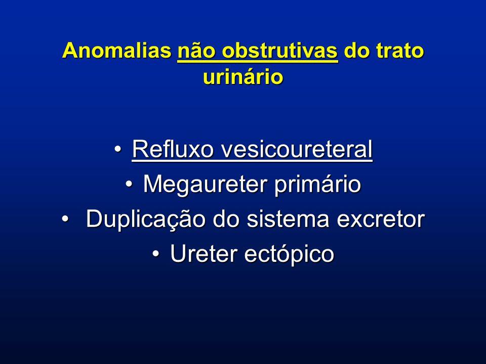 Anomalias não obstrutivas do trato urinário