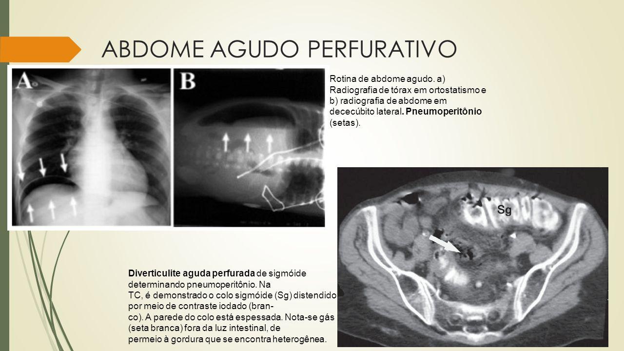 ABDOME AGUDO PERFURATIVO