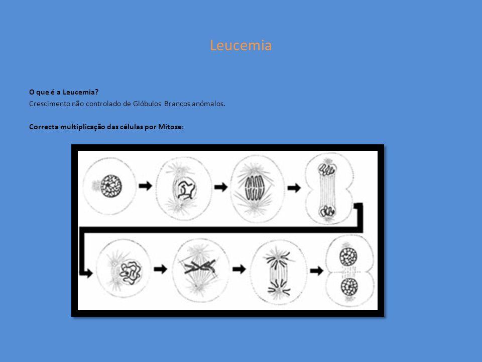 Leucemia O que é a Leucemia. Crescimento não controlado de Glóbulos Brancos anómalos.