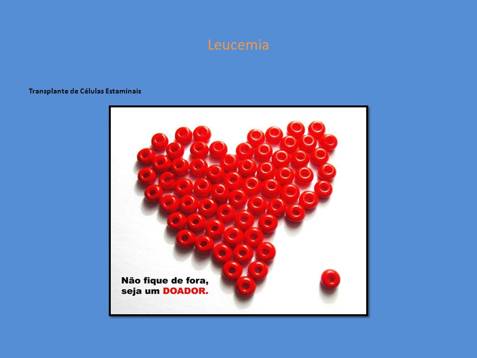 Leucemia Transplante de Células Estaminais
