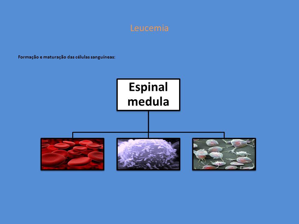 Leucemia Formação e maturação das células sanguíneas: Espinal medula