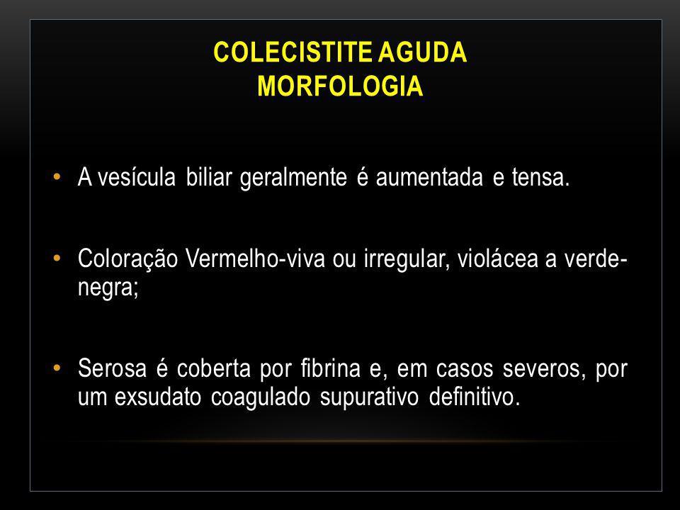 Colecistite Aguda Morfologia