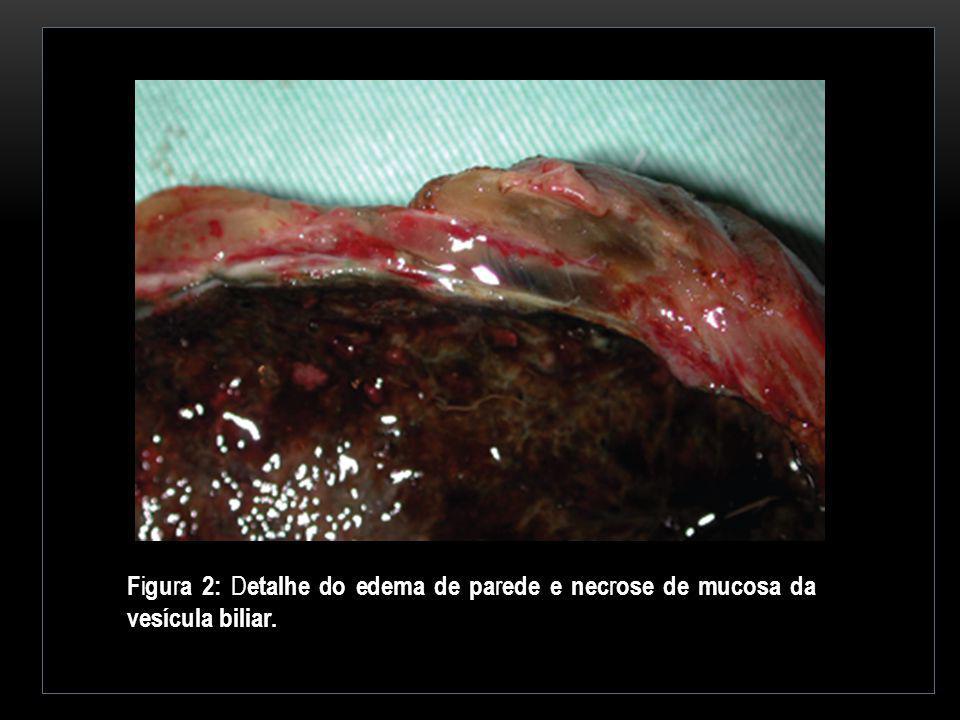 Figura 2: Detalhe do edema de parede e necrose de mucosa da vesícula biliar.