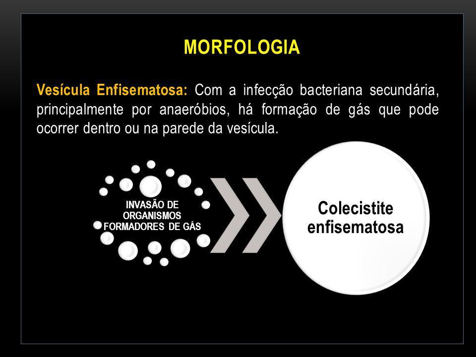 INVASÃO DE ORGANISMOS FORMADORES DE GÁS Colecistite enfisematosa