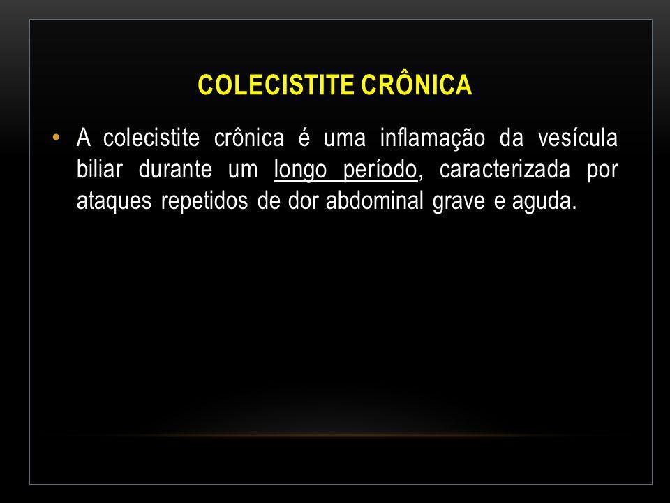 Colecistite Crônica