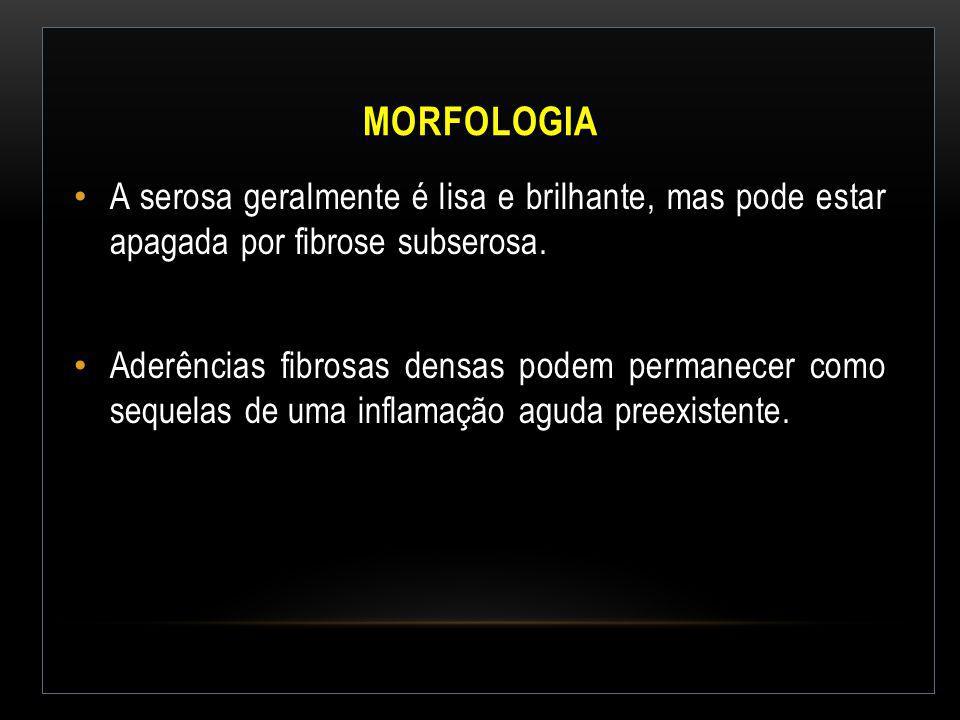 Morfologia A serosa geralmente é lisa e brilhante, mas pode estar apagada por fibrose subserosa.