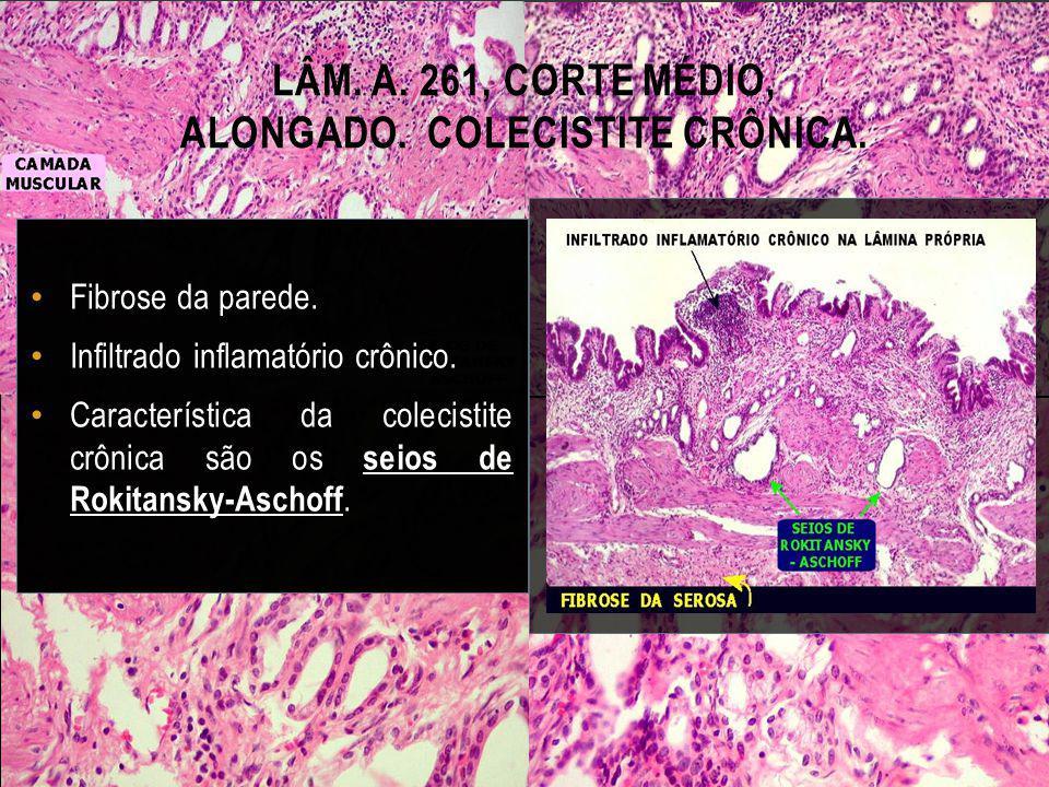 Lâm. A. 261, corte médio, alongado. Colecistite crônica.