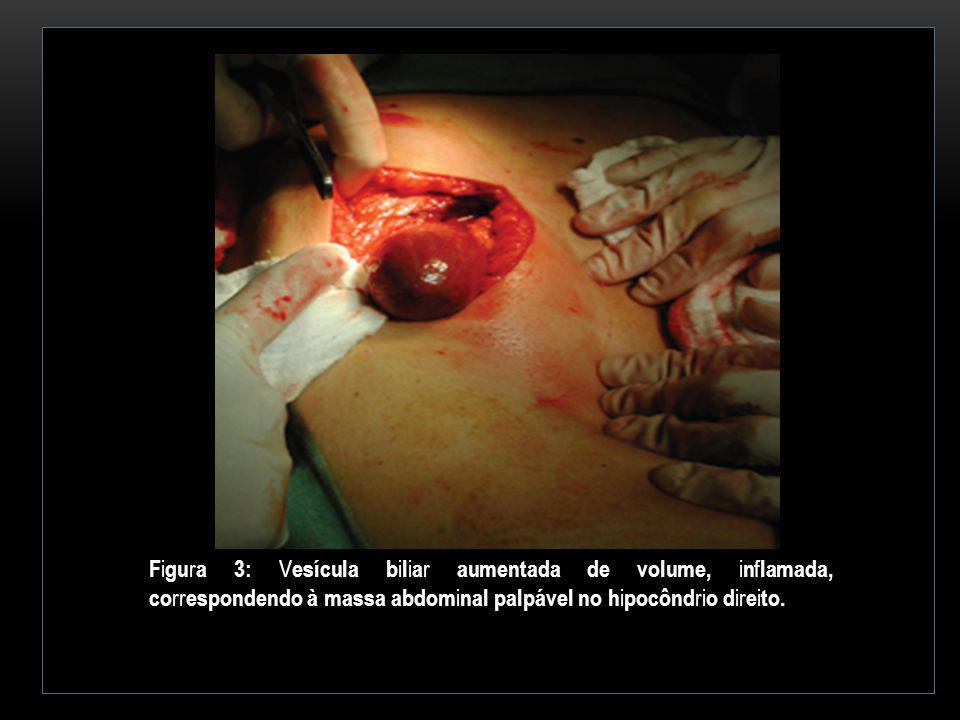 Figura 3: Vesícula biliar aumentada de volume, inflamada, correspondendo à massa abdominal palpável no hipocôndrio direito.