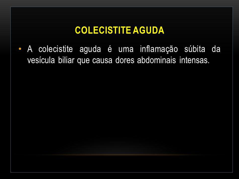 Colecistite Aguda A colecistite aguda é uma inflamação súbita da vesícula biliar que causa dores abdominais intensas.