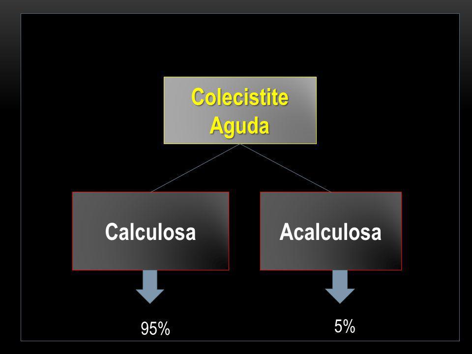 Colecistite Aguda Calculosa