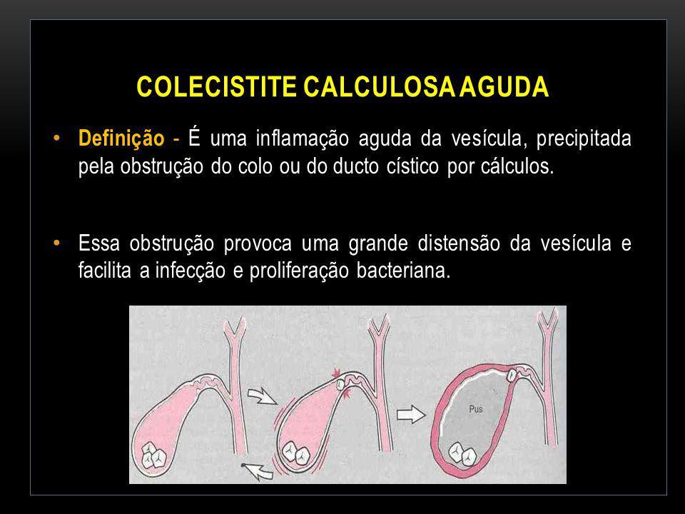 Colecistite Calculosa Aguda