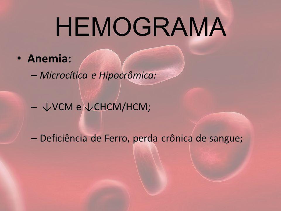 HEMOGRAMA Anemia: Microcítica e Hipocrômica: ↓VCM e ↓CHCM/HCM;