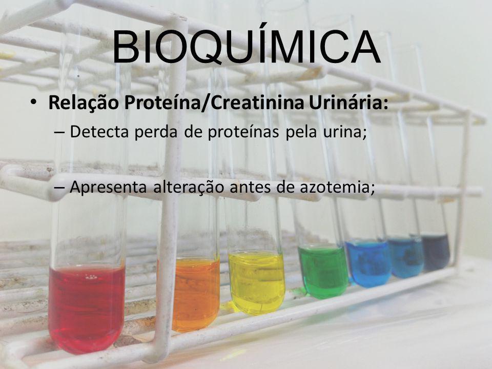 BIOQUÍMICA Relação Proteína/Creatinina Urinária: